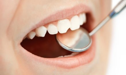 Sigilarea dinților – cea mai bună metodă de prevenire a cariilor dentare