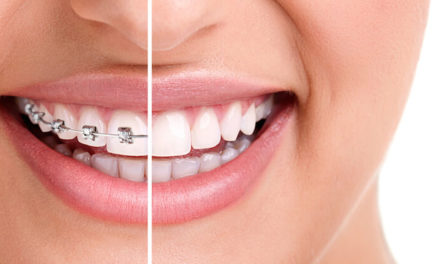 Ce trebuie sa faci pe parcursul tratamentului cu aparat dentar pentru a te bucura de cele mai bune rezultate?