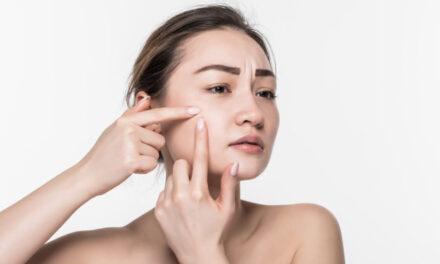 Care sunt cele mai comune cauze pentru acnee si cum o putem preveni?